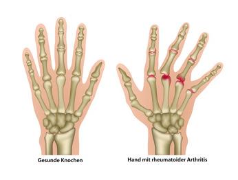 Schmerzen an der Hand - Wir helfen Ihnen